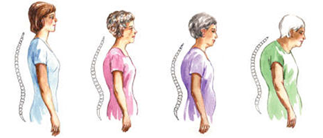 Image result for osteoporoza